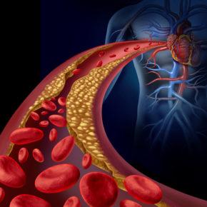 site colestero
