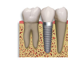 implante_dentario
